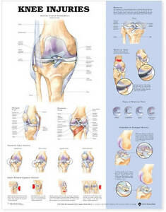KNEE INJURIES POSTER (66x51cm) ANATOMICAL CHART NEW EDUCATIONAL
