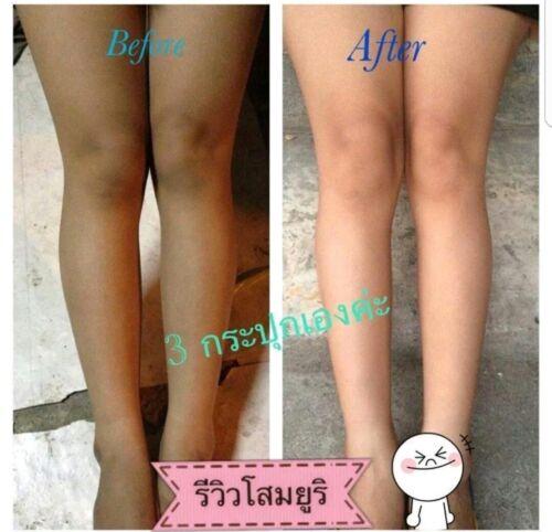 Lightening cream for inner thighs dark knees elbow skin tone