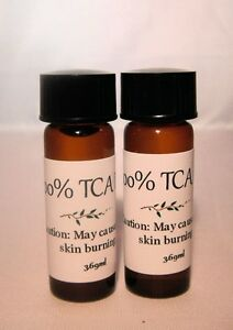 100 tca trichloroacetic acid chemical facial peel acne