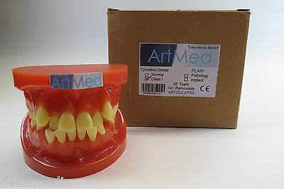 Dental Model Anatomy Study Teach Model Typodont Orthodontic Teeth Anormal Artmed
