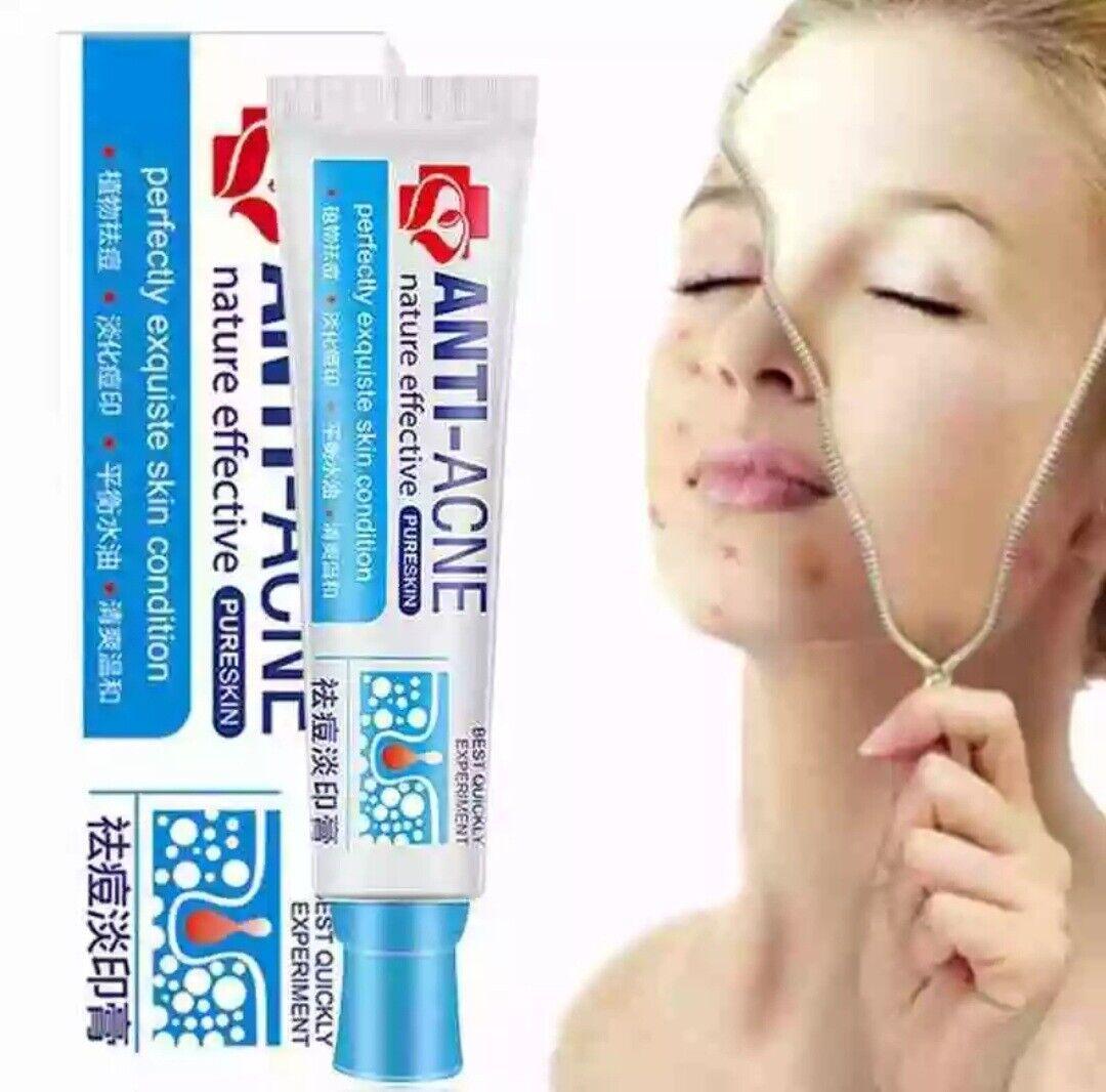 (100g42,90) AKNE CREME Hautpflege Pickel Entferner unreine Haut Acne Mitesser