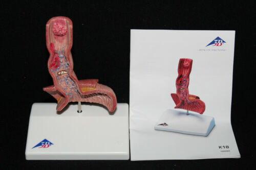 3B Scientific K18 Life-Size Human Esophagus Diseases Model RW