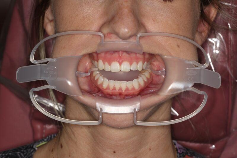 SeeMore Lip, Cheek & Tongue Retractors - Large