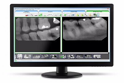 Evasoft Dental Imaging Software License Only..