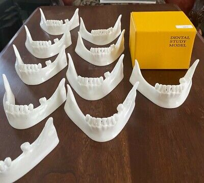 Dental Full Lower Arch Training Model- Implant And Ridge Split