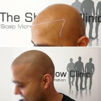 Scalp Micropigmentation - cosmetic hair tattooing