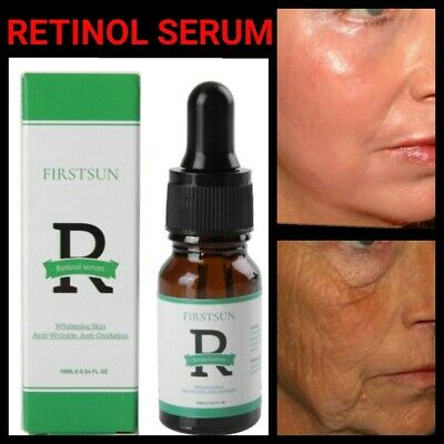 Lifting Face Serum (Best Retinol Face Serum With Hyaluronic Acid Anti-Wrinkle & Aging Skin Lifting)