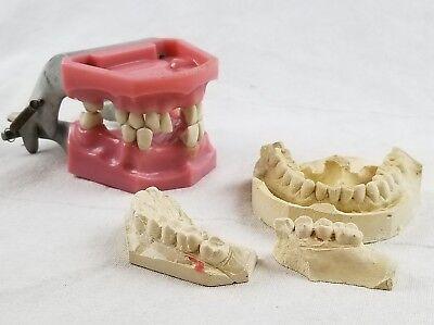 Vintage Columbia Dentoform S562 Dental Articulating Teeth Model Steampunk Gold