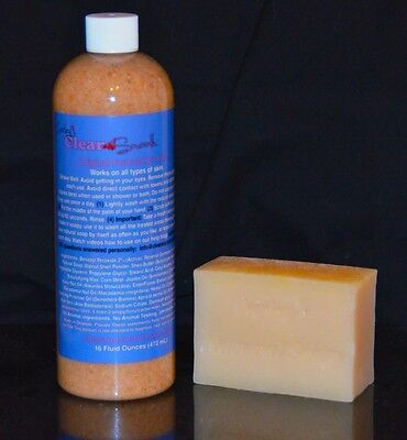 Acne ? you want CLEAR SKIN? Carley's Skin treatment for