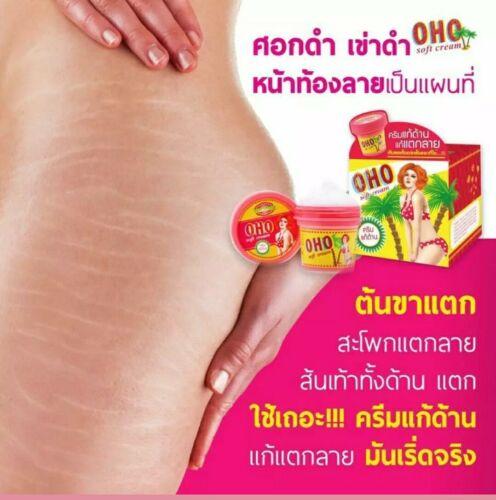 OHO Soft Cream Eliminate Stretch Marks Remove Dark Skin to Brighten 100g
