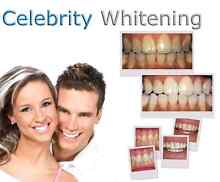 Teeth whitening business equipment for salon or mobile Melbourne CBD Melbourne City Preview