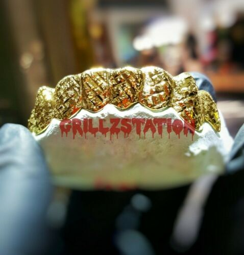 Custom Grillz Gold Teeth with Diamond dust diamond Cut design
