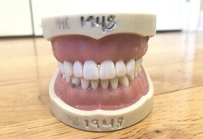 Kilgore Nissin Pro200 Soft Gum Dental Typodont