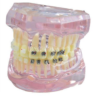 Dental Orthodontic Study Teach Teeth Model Metal Ceramic Brackets Braces Oral