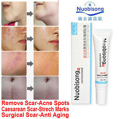 *** Nuobisong Acne Scar Stretch Mark Removal Cream Treatment Face Whitening