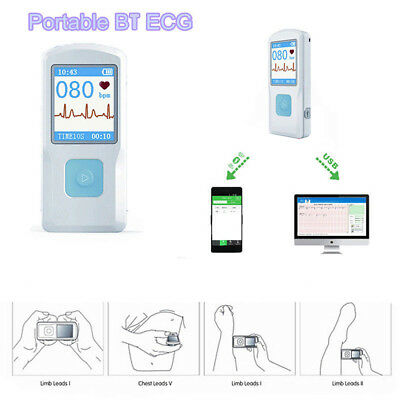 Contec Pm10 Portable Ecg Ekg Machine Color Screen Ecg Monitor Handheld U0x7