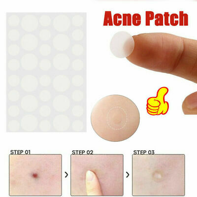 36Pcs Skin Tag&Acne Patch Hydrocolloid Acne and Skin  Invisible Remover Patches