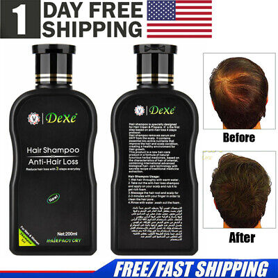 USPS Dexe Anti Hair Loss Shampoo Hair Fast Regrowth 100% Natural For Men &Women, used for sale  Dayton