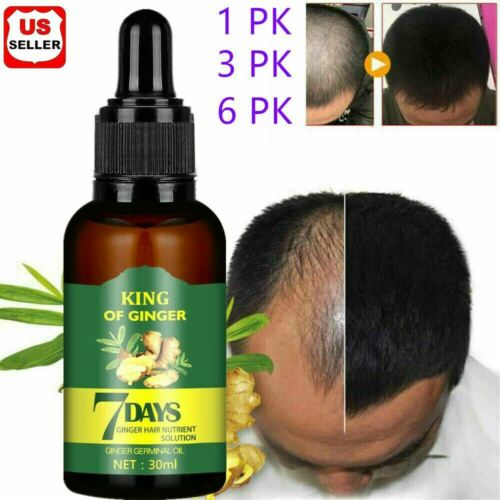 Regrow 7 Day Ginger Germinal Hair Growth Serum Hairdressing Oil Loss Treatment Hair Care & Styling
