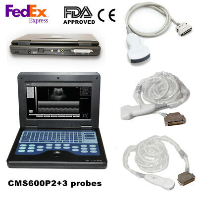 Portable Ultrasound Scanner Laptop Machine With 3 Probesconvex Linear Cardiac