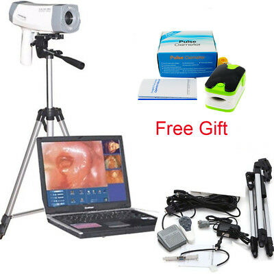 Digital Video Electronic Colposcope Sony 800000 Pix Camera Softwaretripod Tool