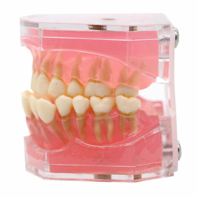 1 Pc Dental Standard Plastic Teeth Model Study Teach With Removable Teeth 4004