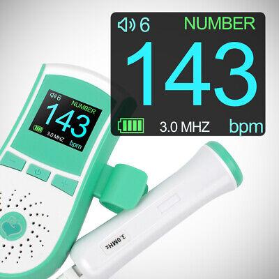 Us 3mhz Fetal Doppler Baby Heartbeat Sound Ultrasonic Monitor Prenatal Livestock