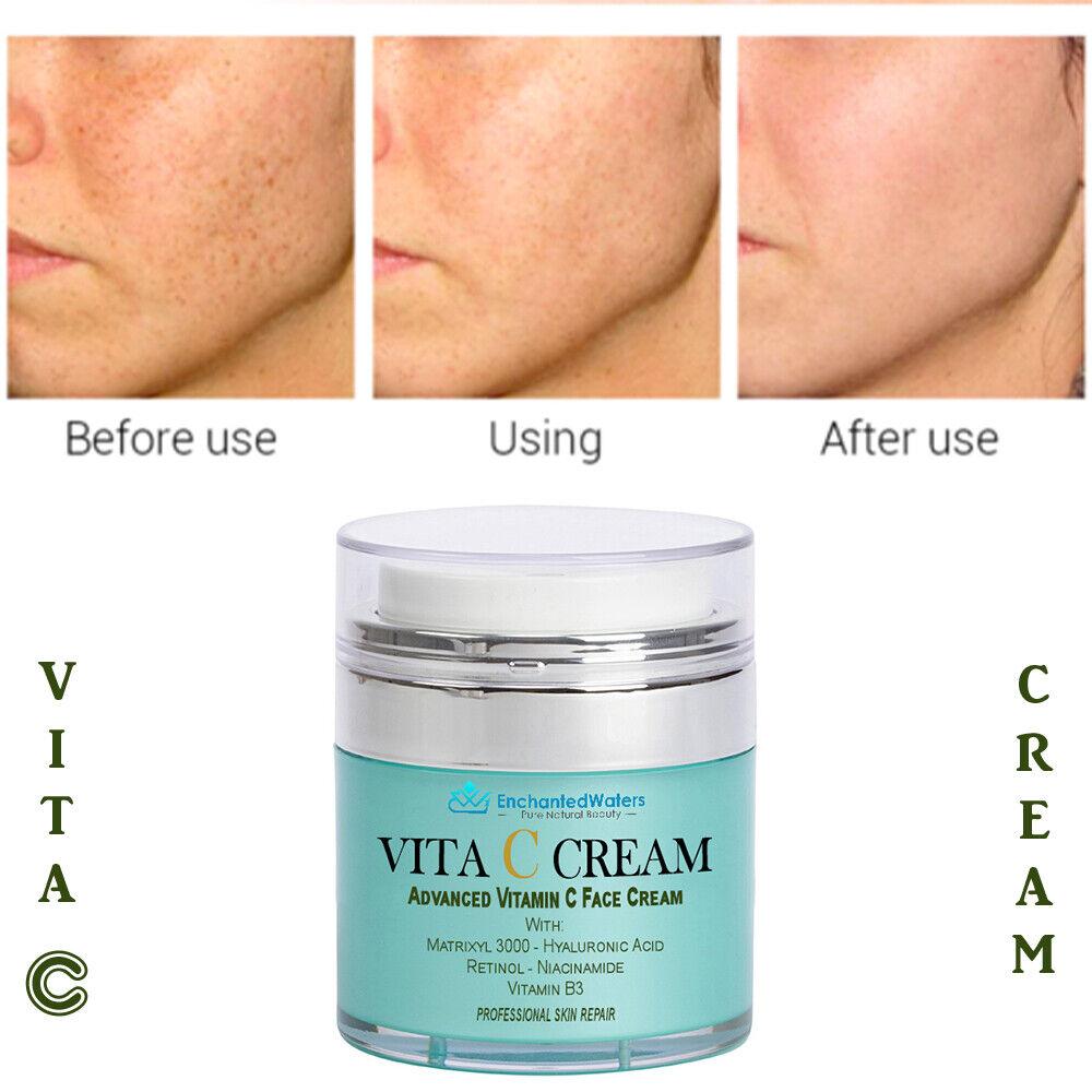 Matrixyl 3000 Peptide Hyaluronic Acid Retinol Collagen Vitamin C Cream AntiAging