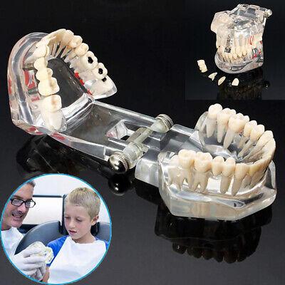 Dental Teeth Teaching Model Study Teach Implant Disease Analysis Removable Tooth