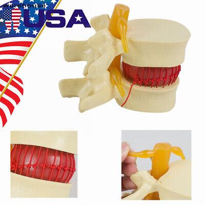 11.5 Medical Disc Herniation Demonstration Model Lumbar Spine Model Study Usa