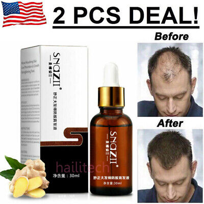 Best Hair-Loss Prevention & Organic Hair Re-Growth Treatment | for Men &