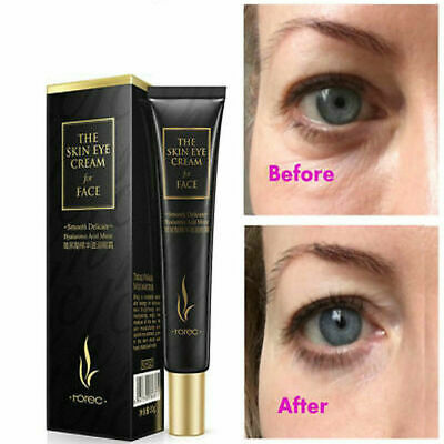 Eye Cream—Most Effective Anti-Age Gel For Dark Circles Puffiness Wrinkles (Most Effective Eye Cream For Dark Circles)