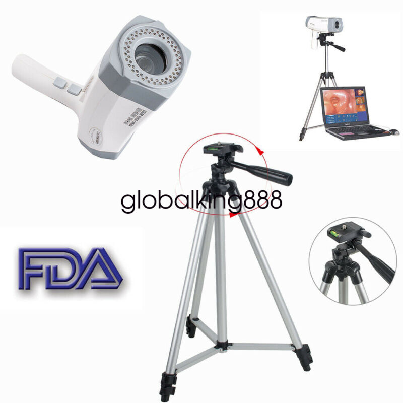 Video Colposcope Digital SONY Camera High Definition+Software+Tripod For Window