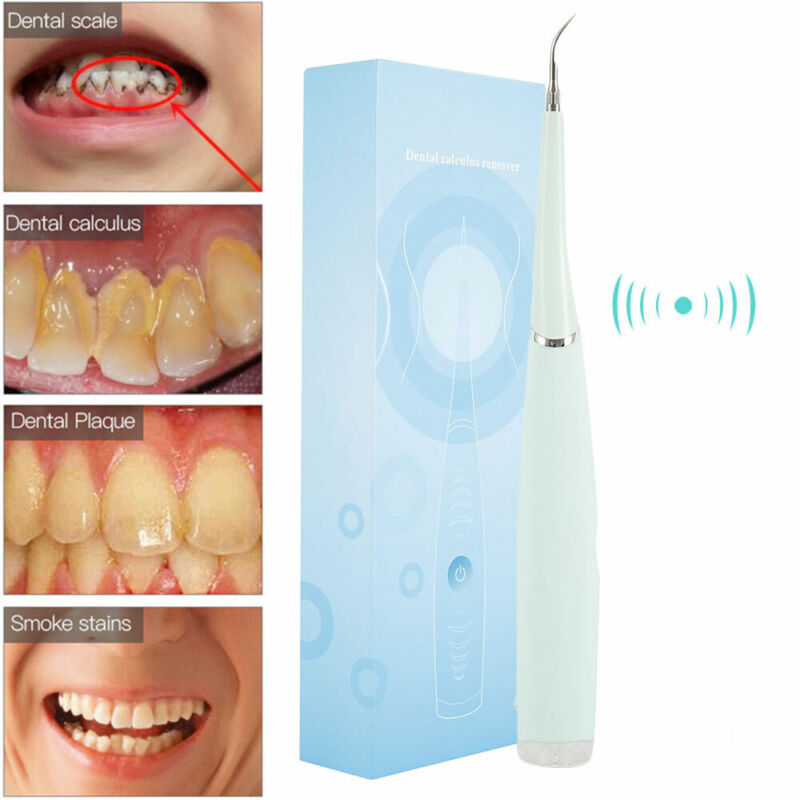 Electric Tooth Cleaner Ultrasonic Oral Irrigator Teeth Stain