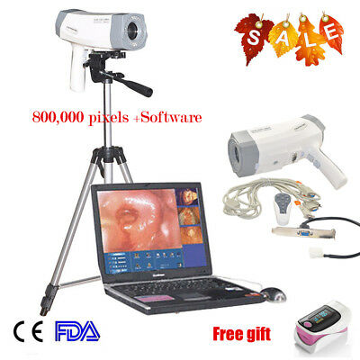 Portable Video Electronic Colposcope Exam Sony Image Colposcopy Tripodsoftware