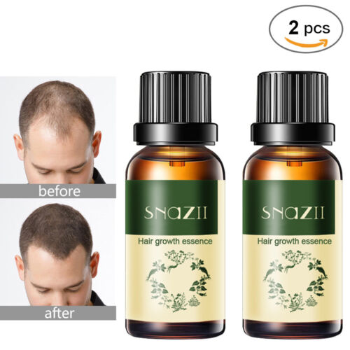 2 x Long Hair Fast Growth Essential Oil Helps Your Hair to Lengthen Grow Longer Hair Care & Styling