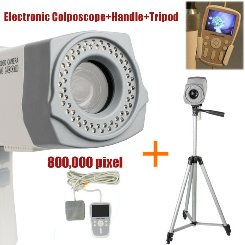 Electronic Colposcope Video Camera 800K pixels LED Screen Handle+Tripod FDA