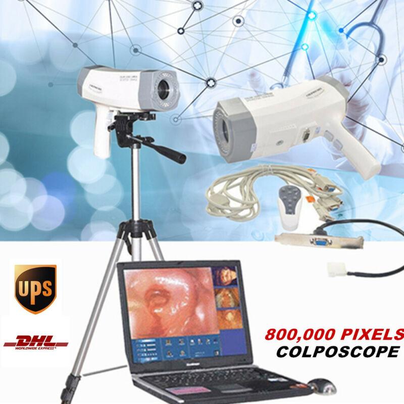 RCS-400 480,000 pixels Video Electronic Colposcope Gynecology Tripod Clniic