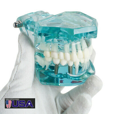 Adental Implant Study Analysis Demonstration Teeth Disease Model W Restoration