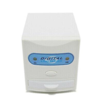 Dental X-ray Film Viewer Usb Reader Scanner Digital Image Converter Md-300x