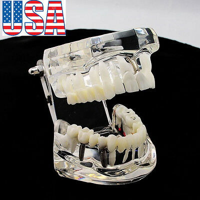 Usa Dental Implant Disease Study Teaching Teeth Model Restoration Bridge Tooth