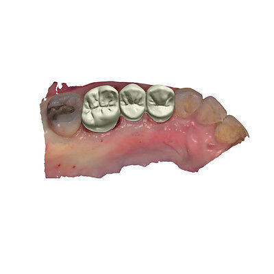 3shape Zirconia Impant Crown Denture Design Exocad Software 3d China Dental Lab