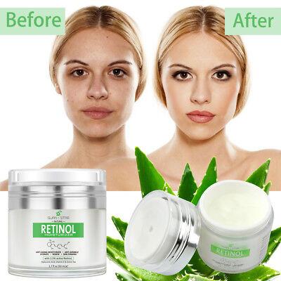 50ml Swan Star 2.5% RETINOL Facial Cream VITAMIN A Anti Aging Wrinkle Acne US