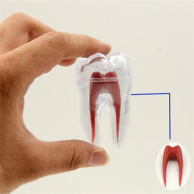 Dental Tooth Molar Model Hard Plastic Teeth Models Crystal Base For Tooth Study