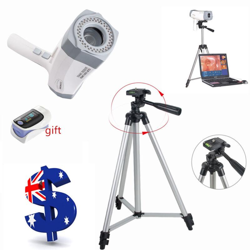 850,000Pixel HD Video Colposcope Digital Camera +Software+Tripod RCS-400