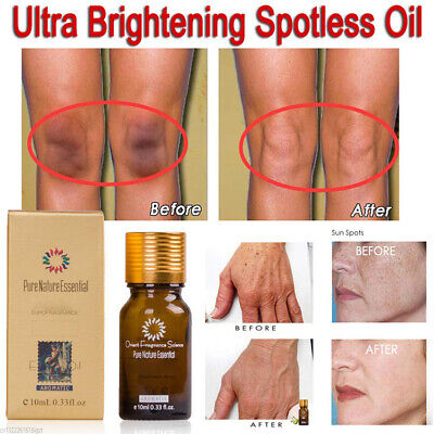Ultra Brightening Spotless Oil Dark Spot Removal Natural Pure Oil Skin Care 10ml