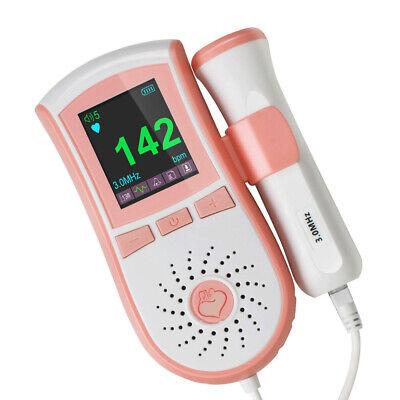 Portable Handheld Fetal Doppler 3mhz Baby Heart Beat Monitor Lcd Machine Wgel