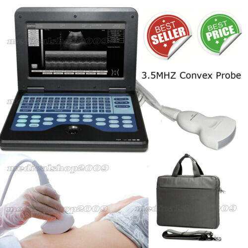 CONTEC Portable laptop machine Digital Ultrasound scanner with Convex probe