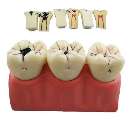 Dental Teeth Tooth Model Endo Endodontic Treatment Demonstrates Study Model Demo