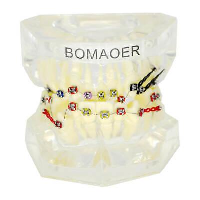 Dental Orthodontic Treatment Plastic Teeth Model With Bracket Elastic Band Wires
